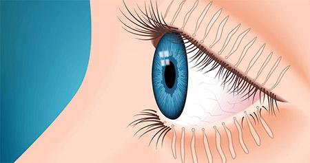 瞼板腺是在我們上下眼皮的眼瞼中,分泌油脂的腺體,藉由分泌出來的油脂,保護眼球表面的水狀淚液層,防止淚水過度蒸發。