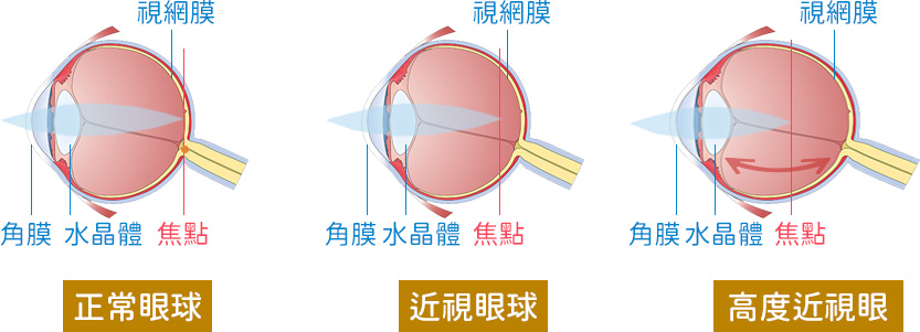 近視眼球與正常眼球的比較圖