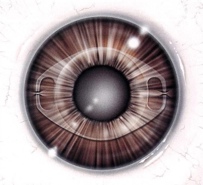 植入式微型鏡片屈光矯正手術(矯視晶體植入手術)之特色與優點