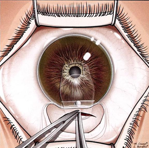 植入式微型鏡片的手術過程:將植入式微型鏡片植入眼內前房。