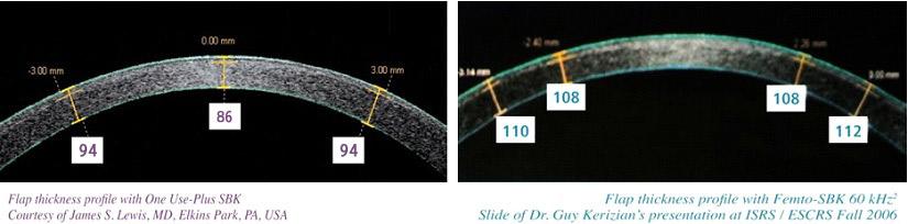 Customized ultra - thin SBK 比飛秒雷射更能精確製作出厚度均等的角膜皮瓣。